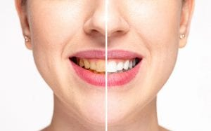 3 Advantages to Professional Teeth Whitening
